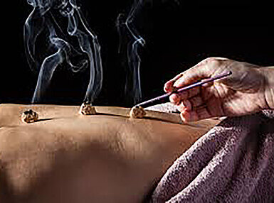 Introduction to Moxibustion Online Certificate Course